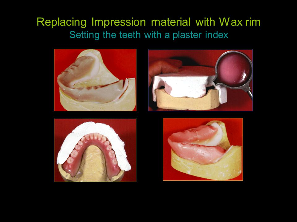 Replacing Impression material with Wax rim Setting the teeth with a plaster index