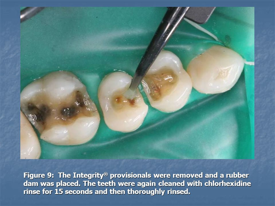 Figure 9: The Integrity ® provisionals were removed and a rubber dam was placed. The teeth were again cleaned with chlorhexidine rinse for 15 seconds