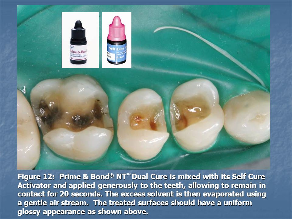 Figure 12: Prime & Bond ® NT Dual Cure is mixed with its Self Cure Activator and applied generously to the teeth, allowing to remain in contact for 20