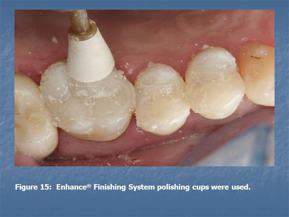 Figure 15: Enhance ® Finishing System polishing cups were used.