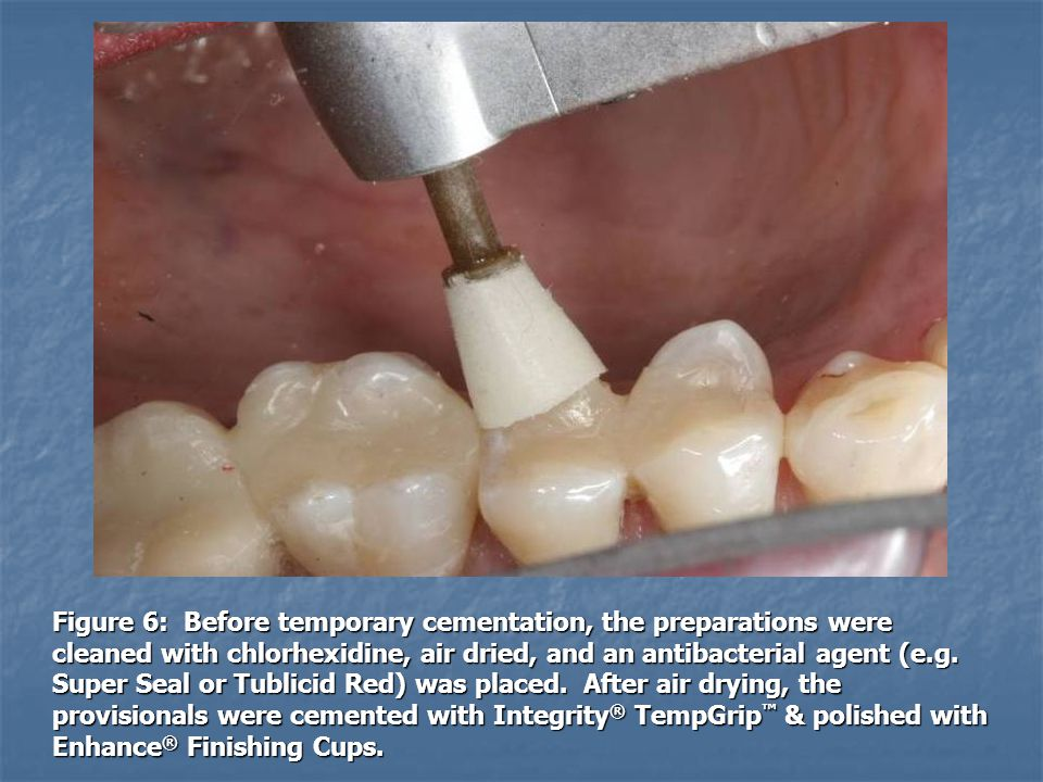 Figure 6: Before temporary cementation, the preparations were cleaned with chlorhexidine, air dried, and an antibacterial agent (e.g. Super Seal or Tu