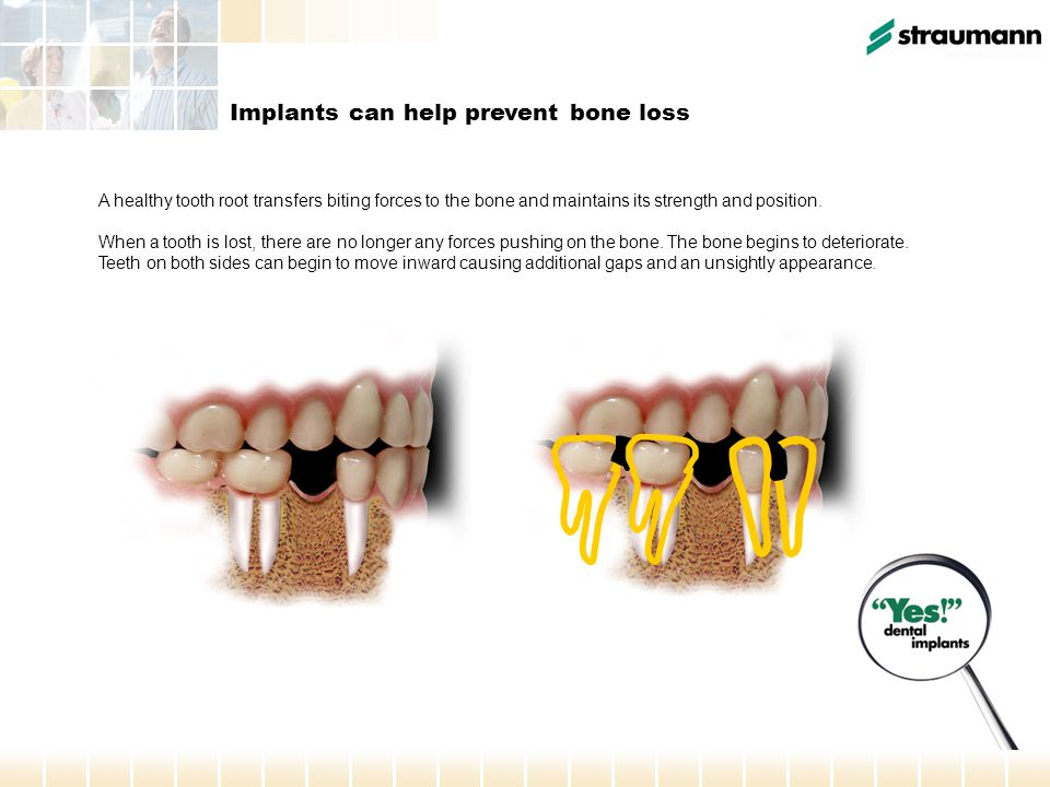 A healthy tooth root transfers biting forces to the bone and maintains its strength and position. When a tooth is lost, there are no longer any forces