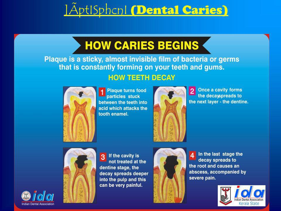 {][m\s¸« Z´ tcmK§Ä ]ÃptISphcnI (Dental Caries) ]Ãnse Agp¡v (plaque, calculus, stains) tamW-tcmKw \ncsXänb ]ÃpIÄ (Irregularities of teeth)