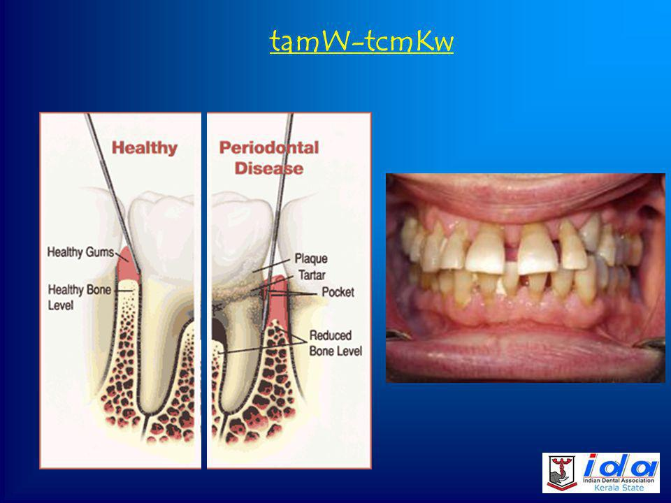 ]Ãnse Agp¡v (Plaque, Tartar, Calculus, Stains), Calculus Stains Dental plaque Tartar