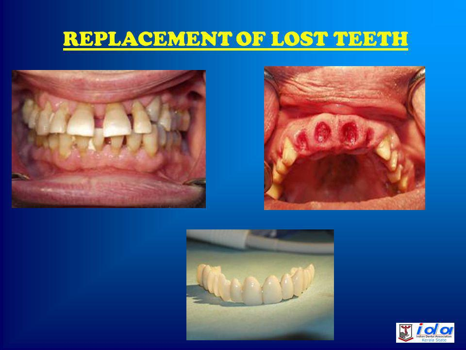 RESULT OF FIXED ORTHODONTIC TREATMENT BEFORE AFTER