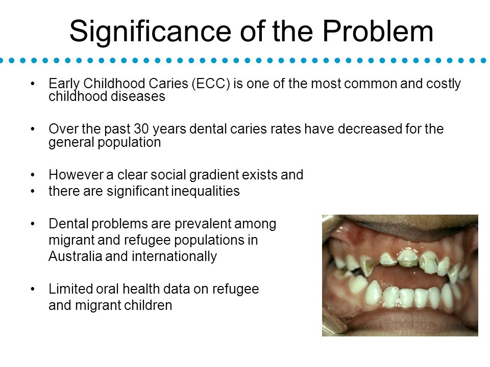Significance of the Problem Early Childhood Caries (ECC) is one of the most common and costly childhood diseases Over the past 30 years dental caries rates have decreased for the general population However a clear social gradient exists and there are significant inequalities Dental problems are prevalent among migrant and refugee populations in Australia and internationally Limited oral health data on refugee and migrant children