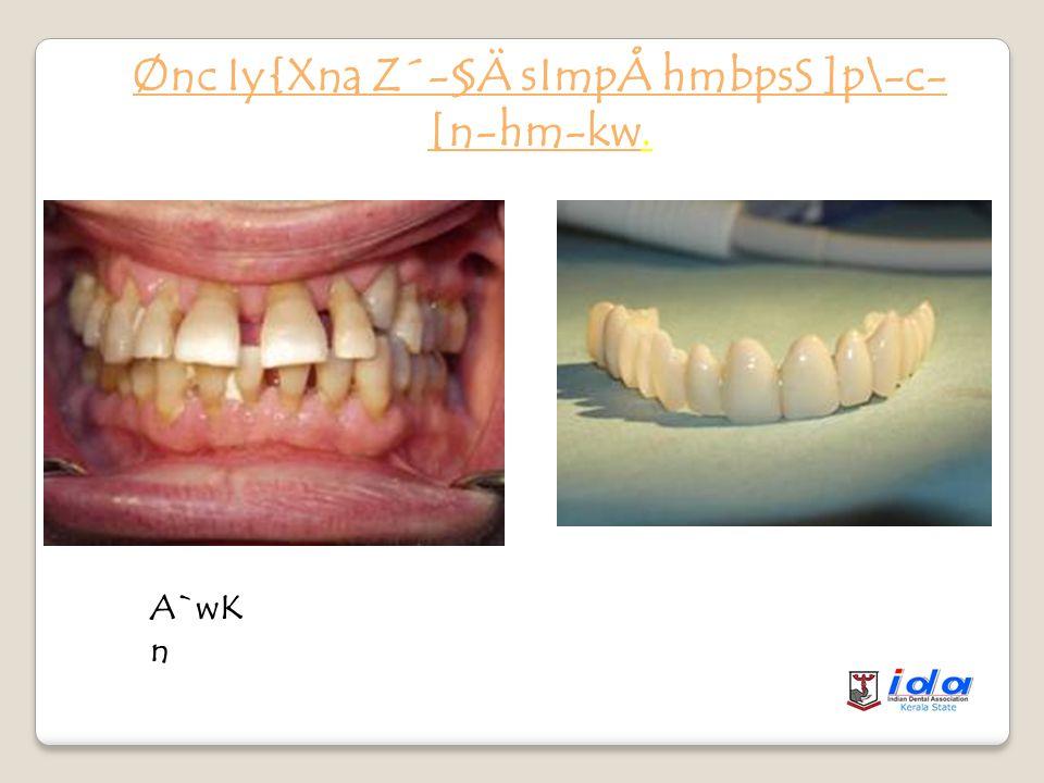 Ønc `mKoI Iy{Xna Z´-§Ä KpW-§Ä 1.anI¨ `wKn. 2.hym]vXn¡pdhv. 3.cpNn-¡p-d-hn-Ã.