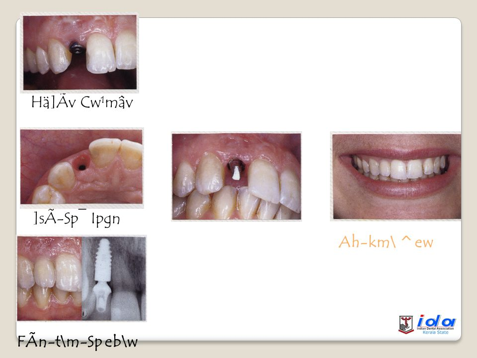 Z´ Cw¹mâp-IÄ Cw¹mâv FÃn-\p- ÅnCw¹mâvnt\mSp IqsS-bpÅ Iy{Xna ]Ãv Dental implants are replacements of lost dentition by means of Biomaterials which are