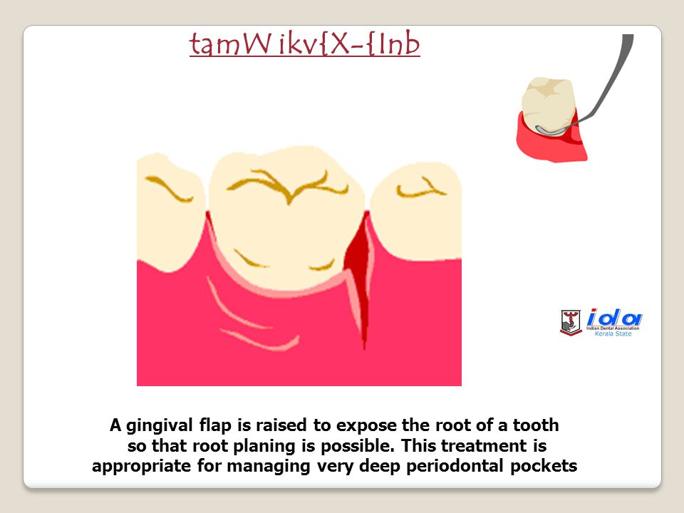 Deep scaling of the root surface of a tooth by using appropriate dental instruments.