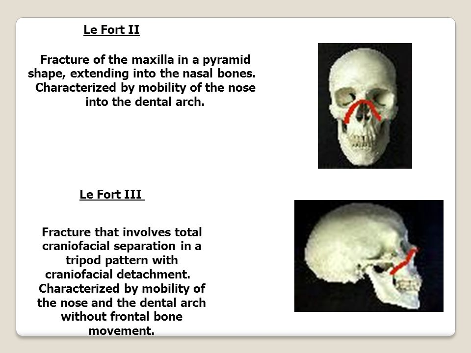 hnhn[-Xcw XmSn-sb-Ãv apdn-hp-IÄ Le Fort I Fracture of the maxilla involving the front teeth and extending bilaterally into the nose.
