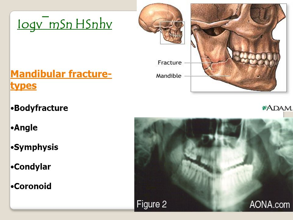 Le Fort II Fracture of the maxilla in a pyramid shape, extending into the nasal bones.