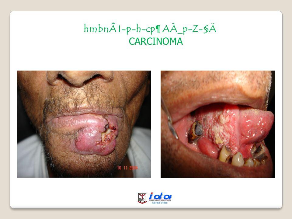 hmbnÂI-p-h-cp¶ AÀ_p-Z-§Ä Squamous cell carcinoma on the lip Squamous cell carcinoma on the mouth Squamous cell carcinoma on the tongue