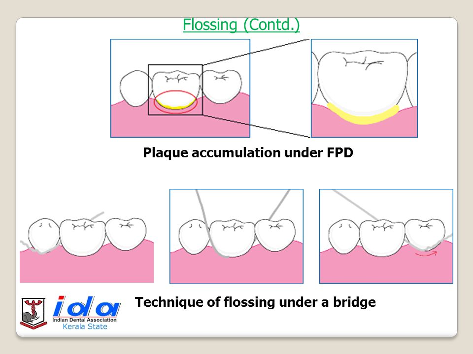 2. ^vtfmÊn§v Dental floss remove dental plaque from Interdental areas & undersurface of bridge inaccessible to ordinary brush PROCEDURE Wrap about 18