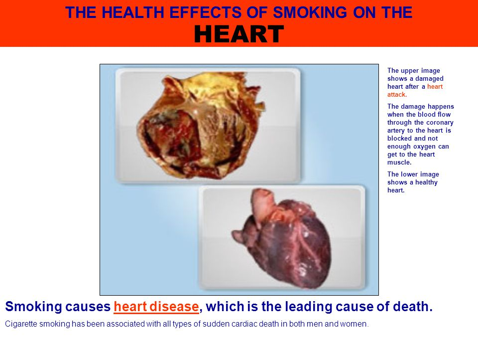 Smoking is related to asthma among children and adolescents.