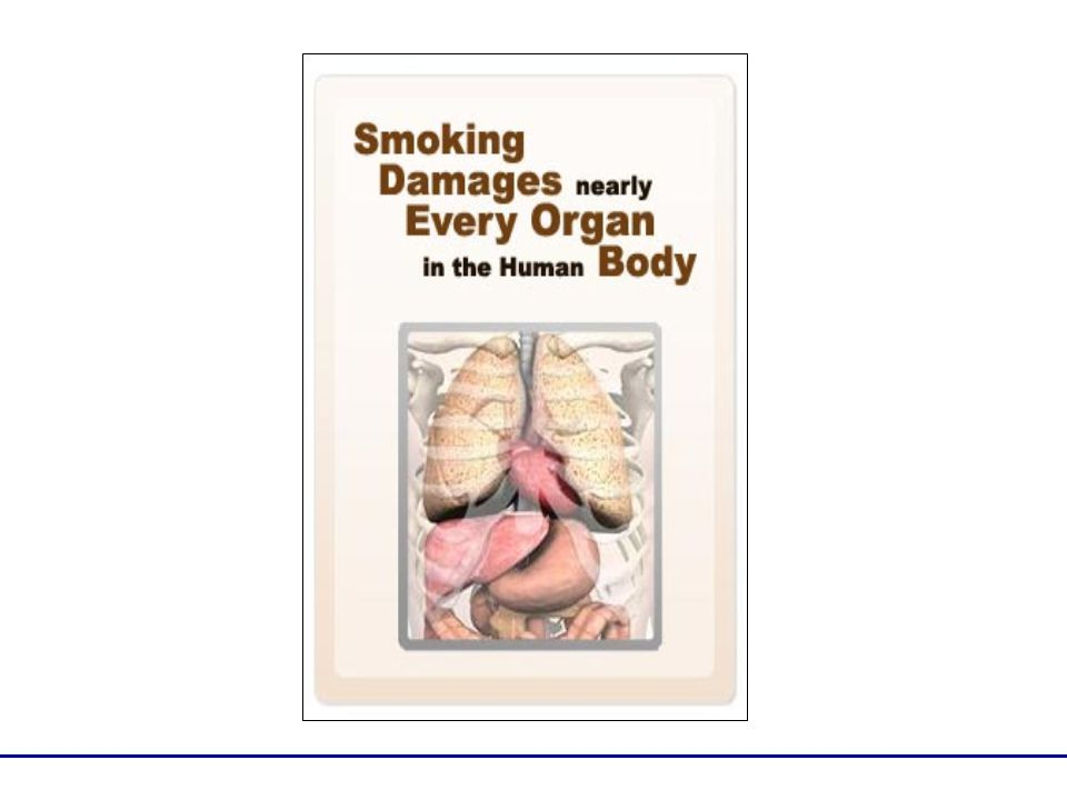 Smoking causes heart disease, which is the leading cause of death.