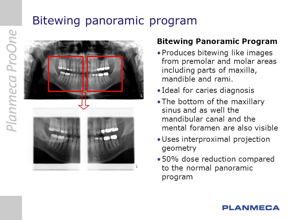 Bitewing panoramic program Bitewing Panoramic Program Produces bitewing like images from premolar and molar areas including parts of maxilla, mandible and rami.