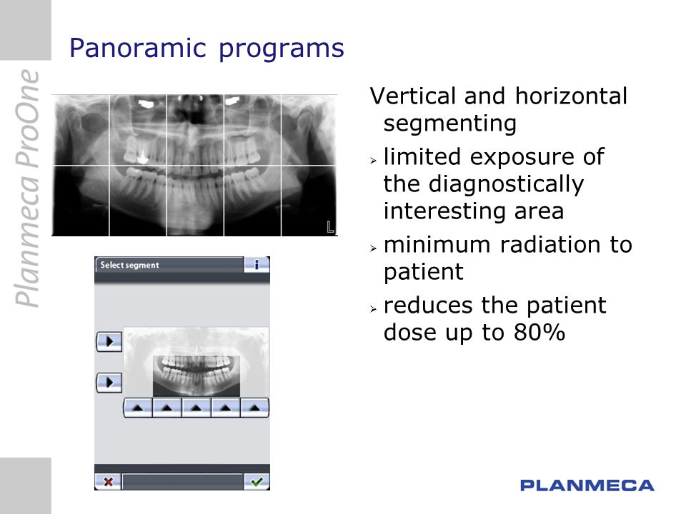 Panoramic programs Vertical and horizontal segmenting limited exposure of the diagnostically interesting area minimum radiation to patient reduces the patient dose up to 80%