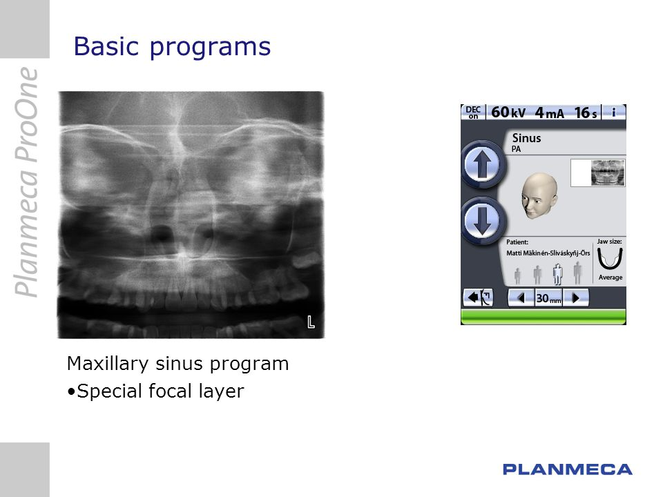 Basic programs Maxillary sinus program Special focal layer