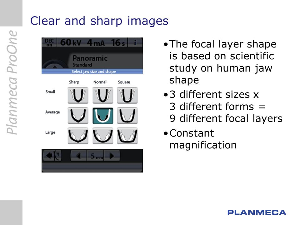 Clear and sharp images The focal layer shape is based on scientific study on human jaw shape 3 different sizes x 3 different forms = 9 different focal layers Constant magnification