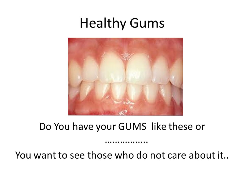 Healthy Gums Do You have your GUMS like these or ……………..