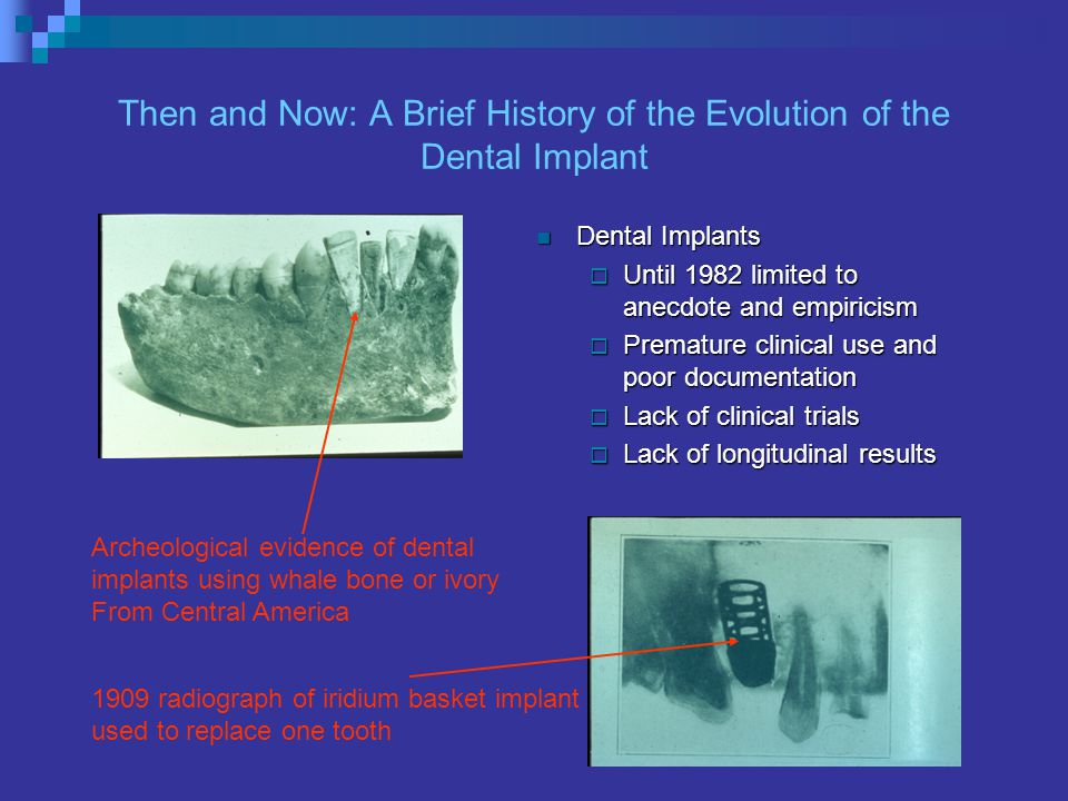 Then and Now: A Brief History of the Evolution of the Dental Implant Dental Implants Dental Implants Until 1982 limited to anecdote and empiricism Until 1982 limited to anecdote and empiricism Premature clinical use and poor documentation Premature clinical use and poor documentation Lack of clinical trials Lack of clinical trials Lack of longitudinal results Lack of longitudinal results 1909 radiograph of iridium basket implant used to replace one tooth Archeological evidence of dental implants using whale bone or ivory From Central America