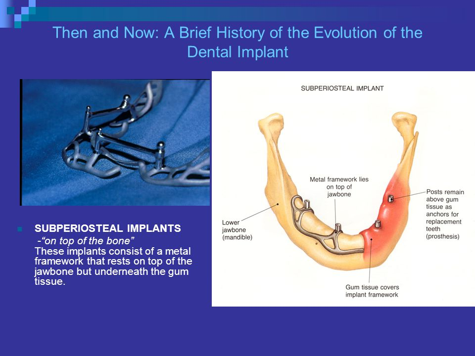 Then and Now: A Brief History of the Evolution of the Dental Implant SUBPERIOSTEAL IMPLANTS -on top of the bone These implants consist of a metal framework that rests on top of the jawbone but underneath the gum tissue.