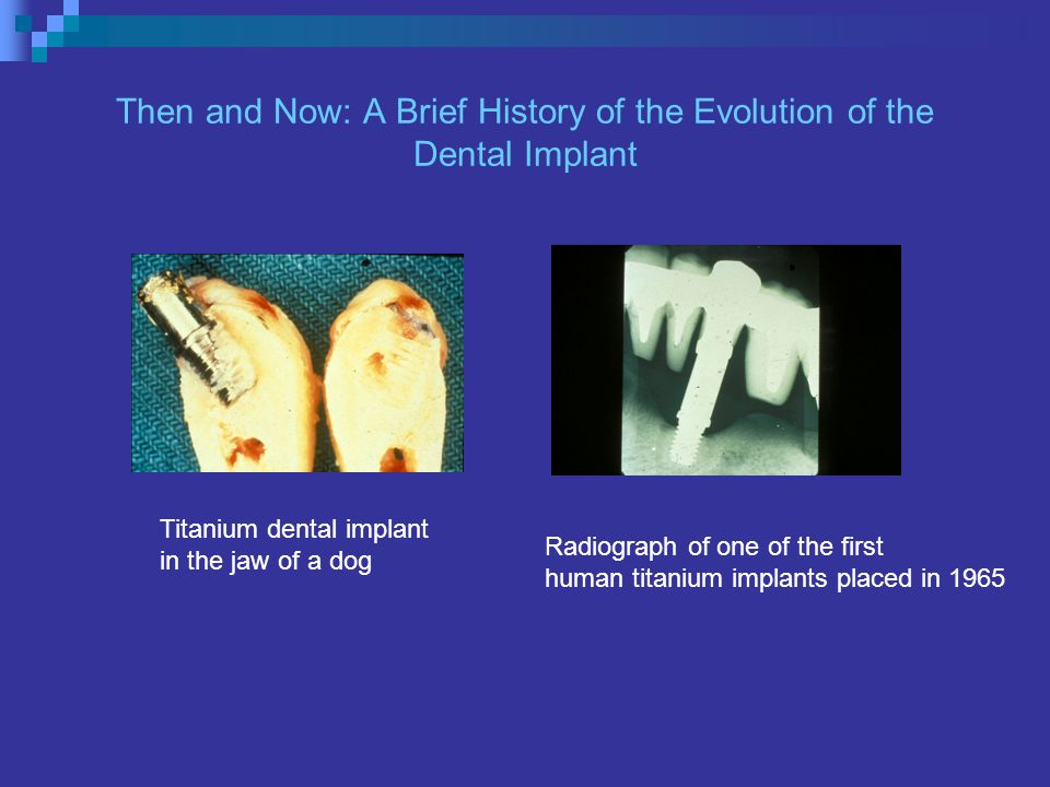 Then and Now: A Brief History of the Evolution of the Dental Implant Radiograph of one of the first human titanium implants placed in 1965 Titanium dental implant in the jaw of a dog