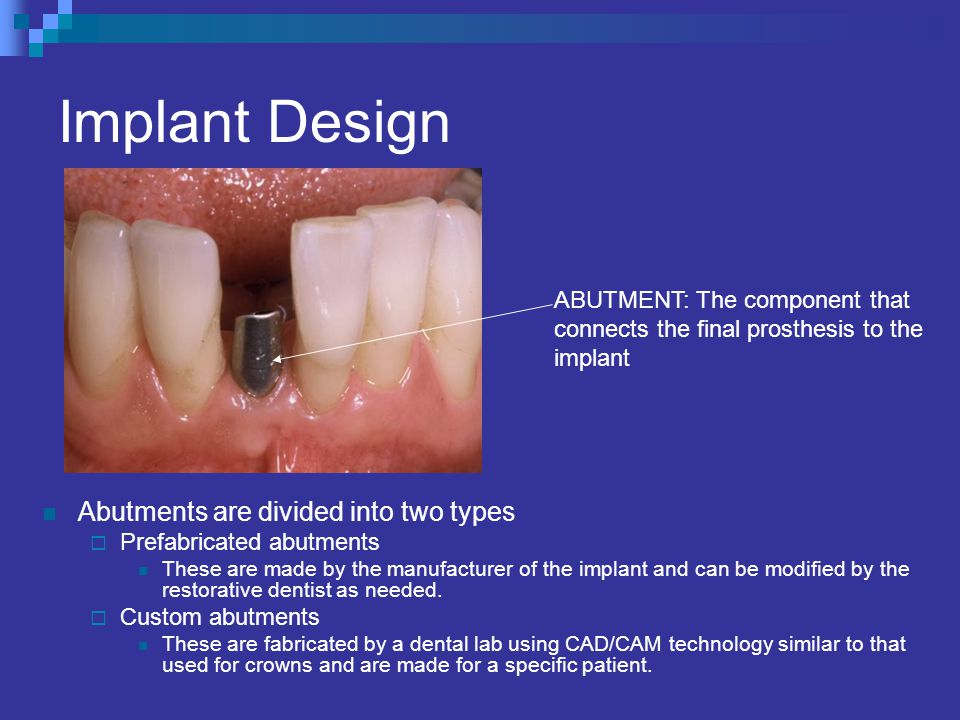 Implant Design Abutments are divided into two types Prefabricated abutments These are made by the manufacturer of the implant and can be modified by the restorative dentist as needed.