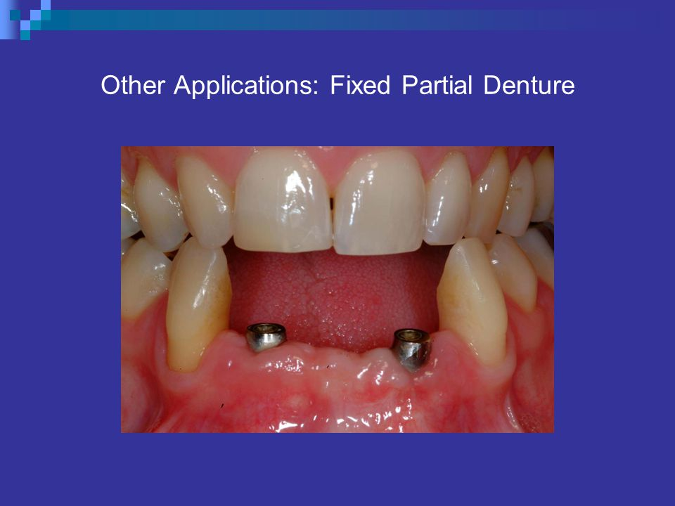 Other Applications: Fixed Partial Denture