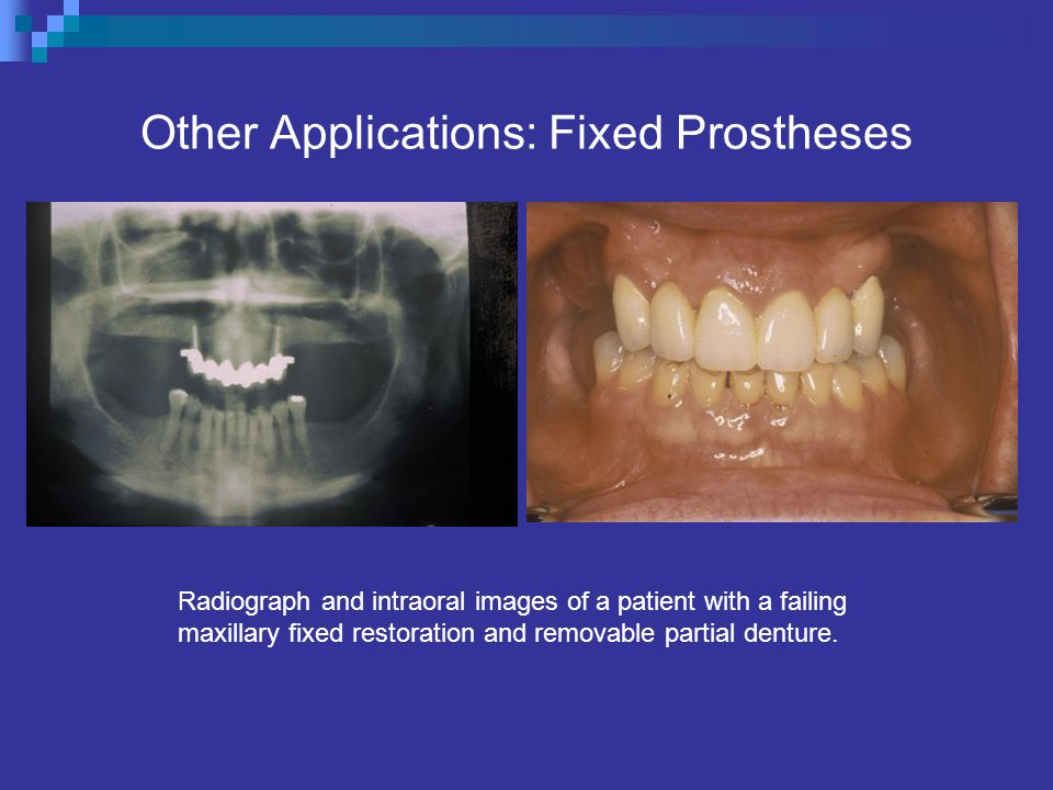 Other Applications: Fixed Prostheses Radiograph and intraoral images of a patient with a failing maxillary fixed restoration and removable partial denture.