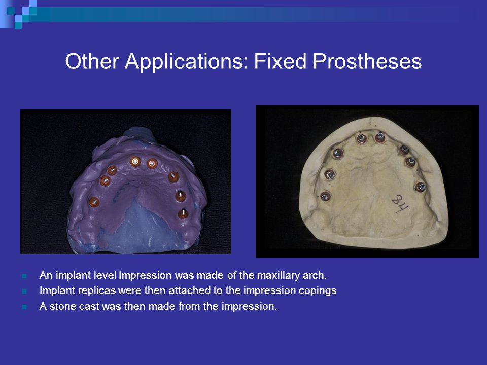Other Applications: Fixed Prostheses An implant level Impression was made of the maxillary arch.