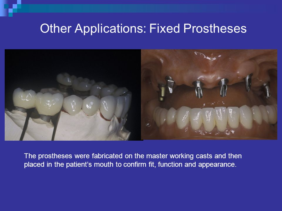 Other Applications: Fixed Prostheses The prostheses were fabricated on the master working casts and then placed in the patients mouth to confirm fit, function and appearance.