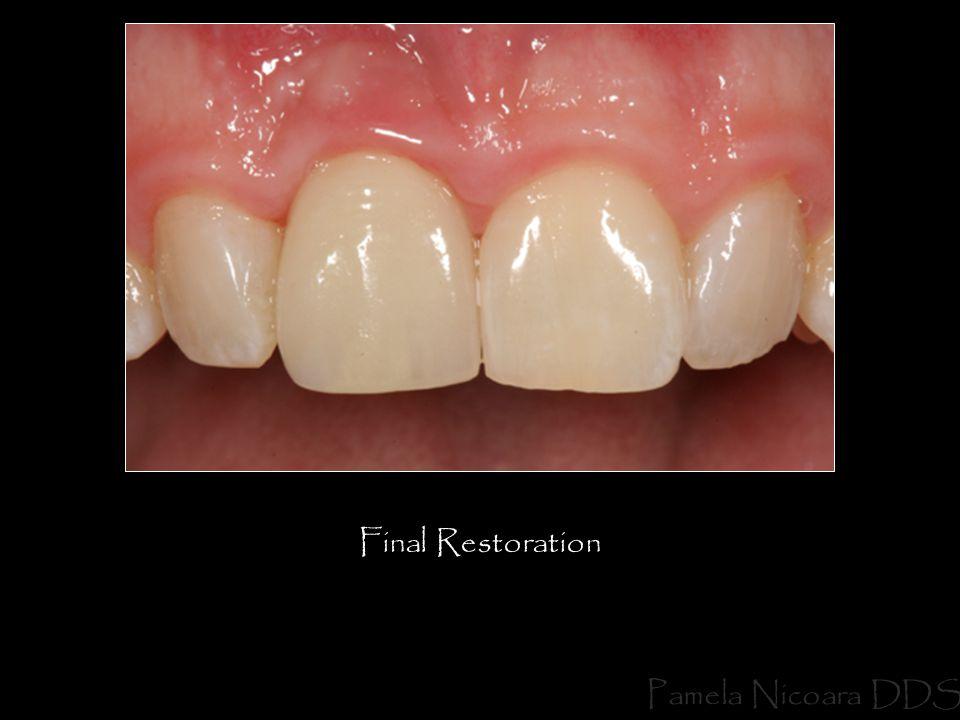 Final Restoration