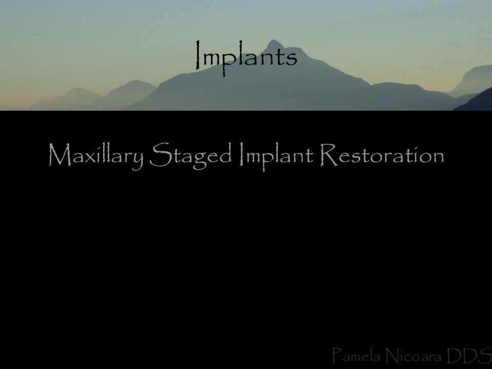 Implants Pamela Nicoara DDS Maxillary Staged Implant Restoration