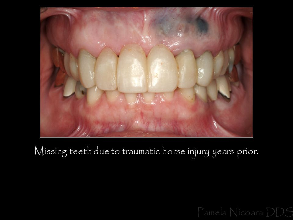 Pamela Nicoara DDS Missing teeth due to traumatic horse injury years prior.