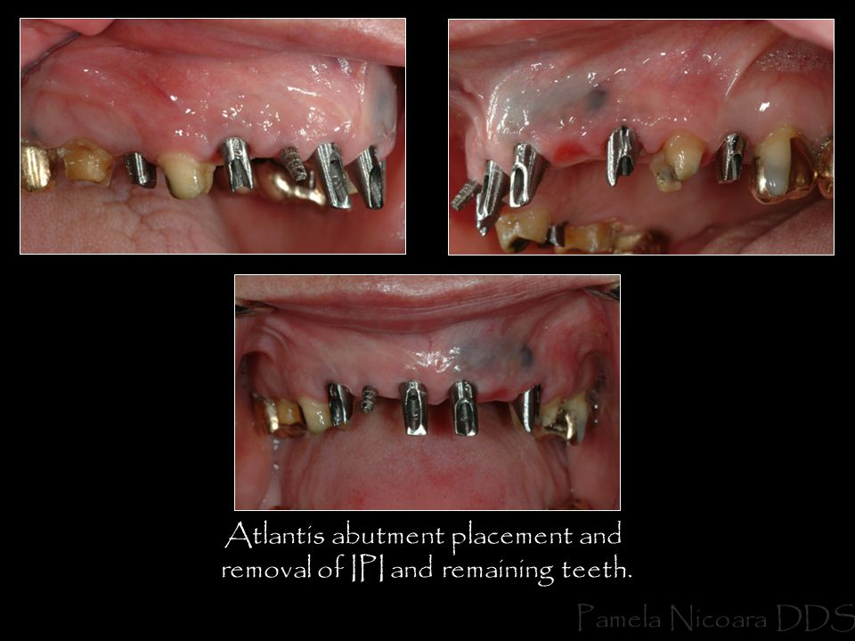 Atlantis abutment placement and removal of IPI and remaining teeth. Pamela Nicoara DDS
