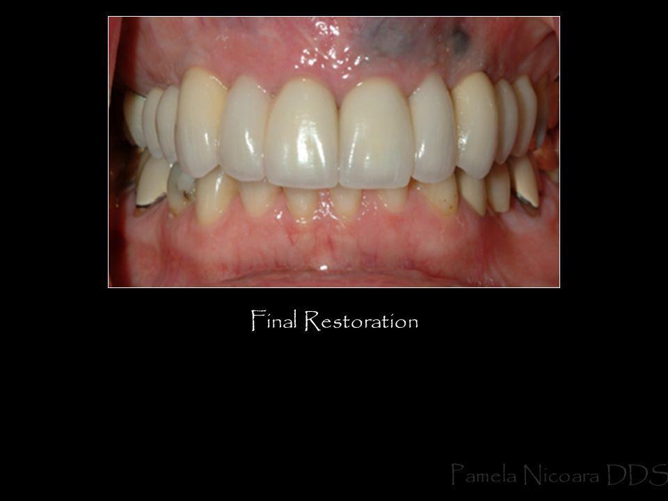 Final Restoration Pamela Nicoara DDS