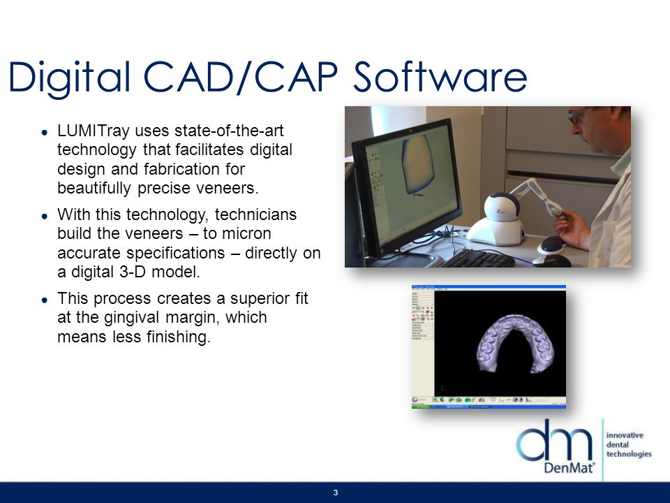 3 Digital CAD/CAP Software LUMITray uses state-of-the-art technology that facilitates digital design and fabrication for beautifully precise veneers.