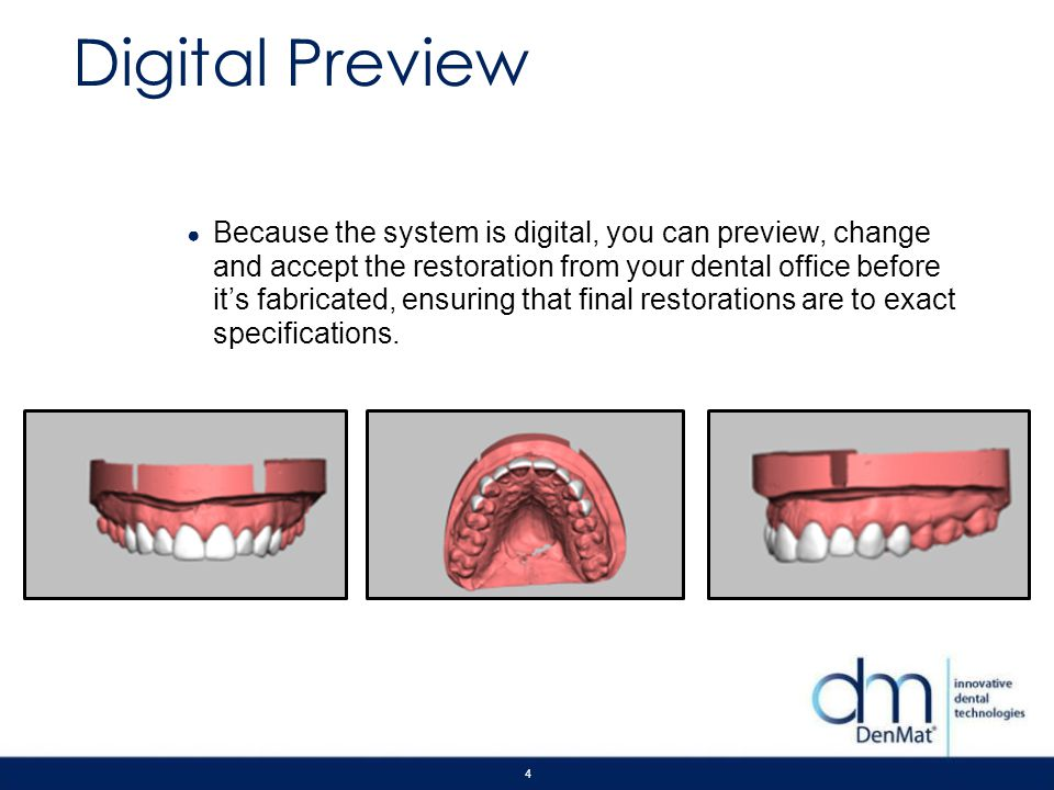 4 Digital Preview Because the system is digital, you can preview, change and accept the restoration from your dental office before its fabricated, ens