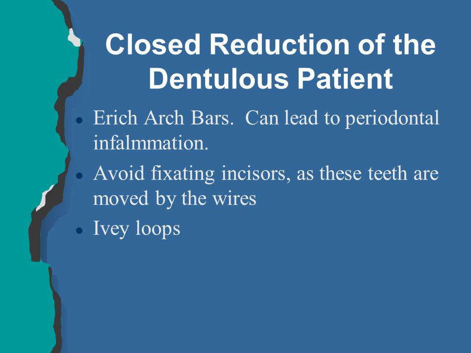 Closed Reduction of the Dentulous Patient l Erich Arch Bars. Can lead to periodontal infalmmation. l Avoid fixating incisors, as these teeth are moved
