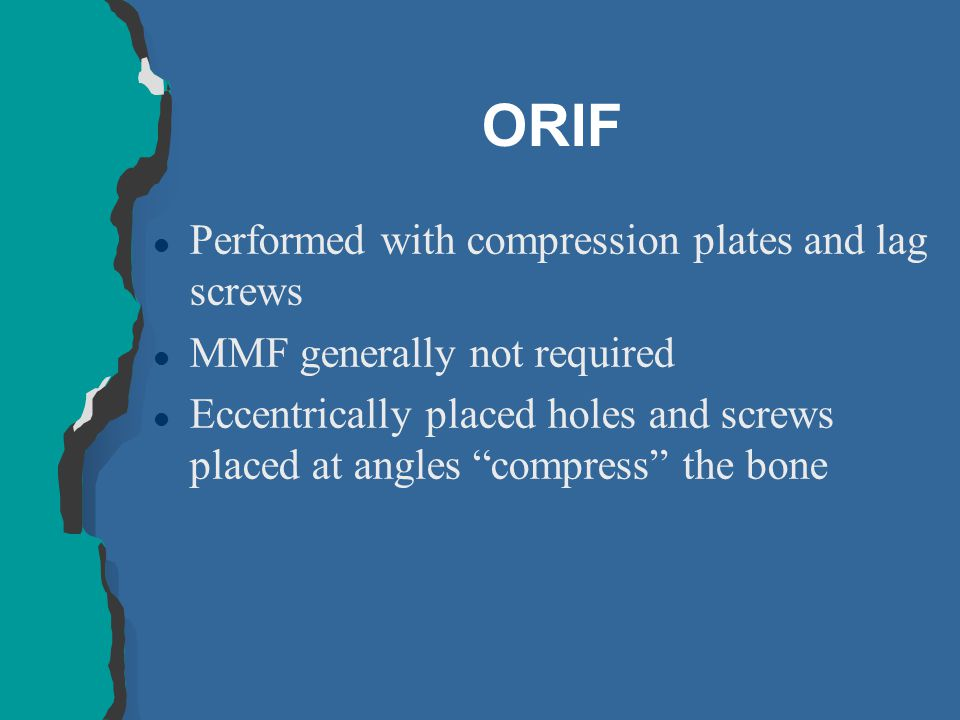 ORIF l Performed with compression plates and lag screws l MMF generally not required l Eccentrically placed holes and screws placed at angles compress