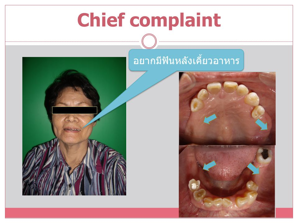 The Disease Control Phase of Treatment Torectomy and alveoloplasty Oral hygiene instruction Scaling and root planning and polishing full mouth 13(O) Resin composite filling