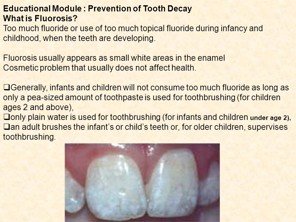 Educational Module : Prevention of Tooth Decay What is Fluorosis.