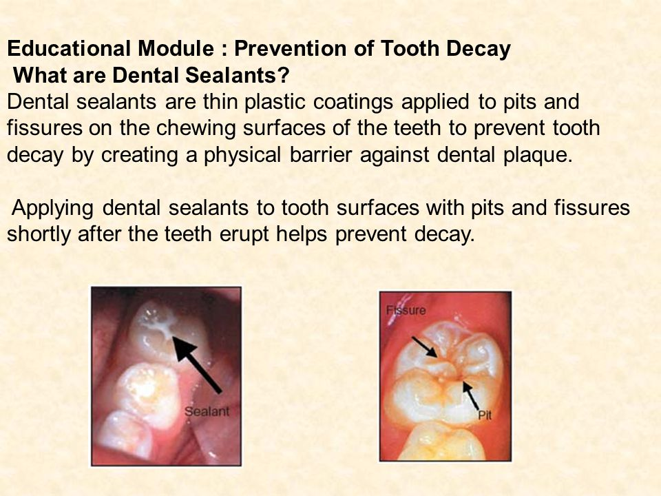 Educational Module : Prevention of Tooth Decay What are Dental Sealants.