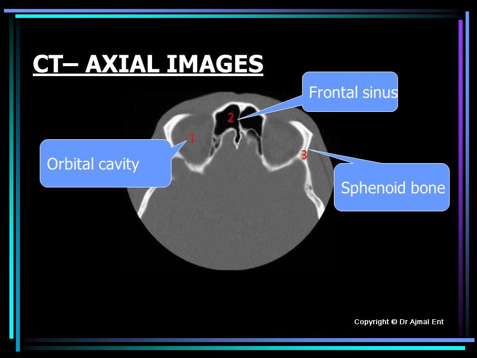 CT– AXIAL IMAGES Sphenoid bone Orbital cavity Frontal sinus