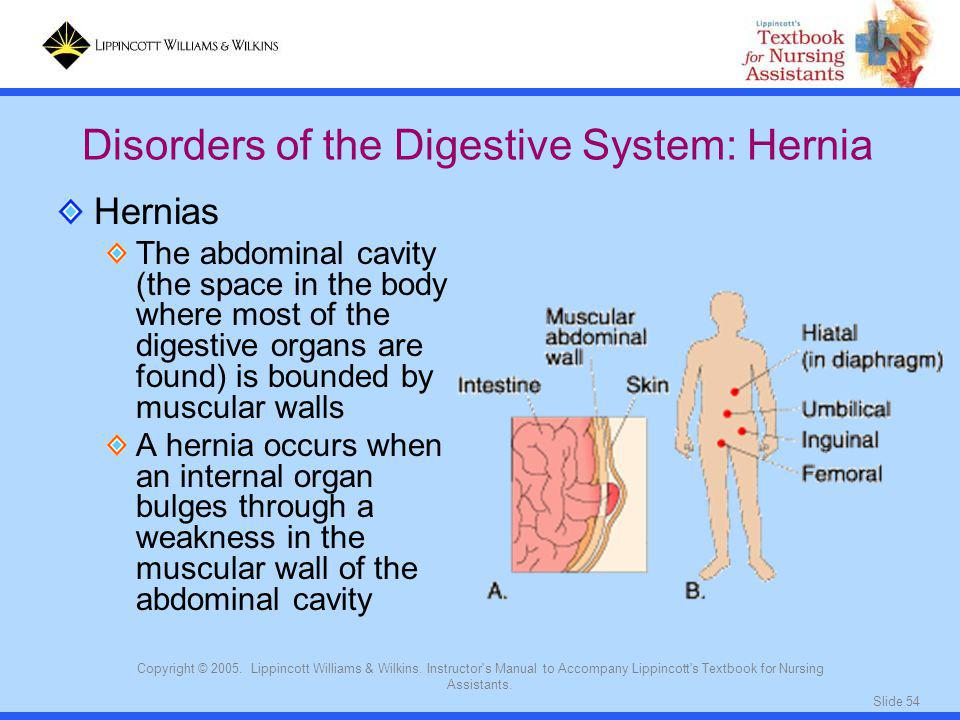 Slide 54 Copyright © 2005. Lippincott Williams & Wilkins. Instructor's Manual to Accompany Lippincott's Textbook for Nursing Assistants. Hernias The a