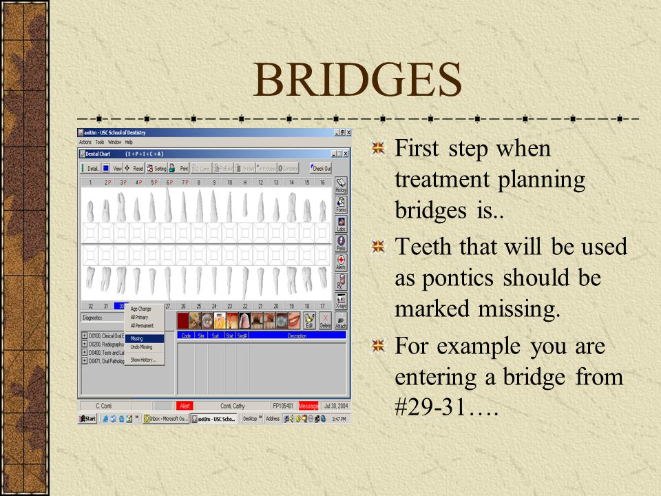 CONTINUED Select tooth #30 (pontic)… Right click… Select missing… See next slide