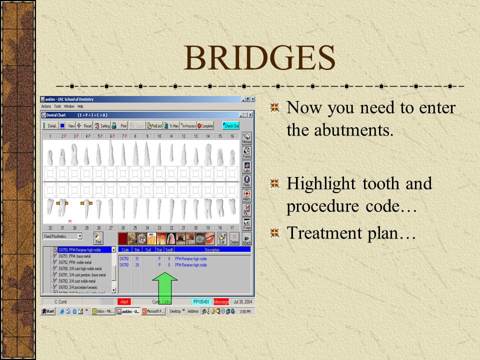BRIDGES Now you need to enter the abutments. Highlight tooth and procedure code… Treatment plan…
