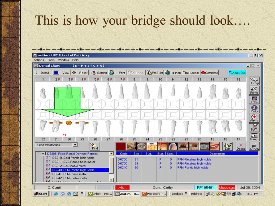 BRIDGES All units (abutments and pontics) must be of the same status at all times…For example: When procedure is started and marked in process When procedure has been completed Dates on all units should ALWAYS be the same (All units are attached).