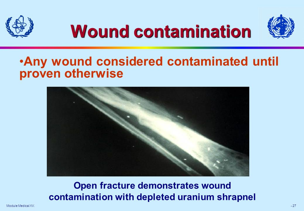Module Medical XV. - 27 Wound contamination Open fracture demonstrates wound contamination with depleted uranium shrapnel Any wound considered contami